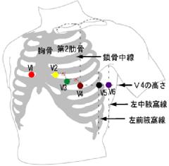 心電図胸部誘導
